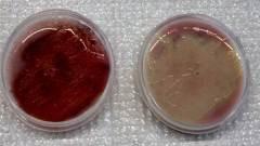exopolysaccahride